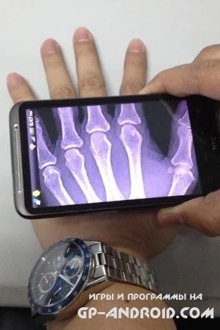 Xray Scan скачать на Андроид